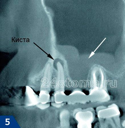 5 dişin kökünün üstünde enflamatuar bir odak (radiküler kist) vardır. Beyaz ok, Gaimore Sinüs alanındaki enflamatuar değişiklikleri gösterir.