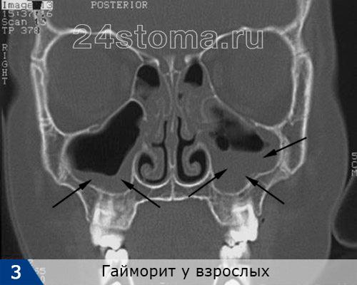 Çift taraflı hymorite. Mukoza zarında keskin bir şekilde kalınlaşır, mukoza zarının keskin bir şekilde kalınlaştırılmasıysa, sinüsün irin ve / veya poliplerle doldurulduğu açıkça görülüyor.