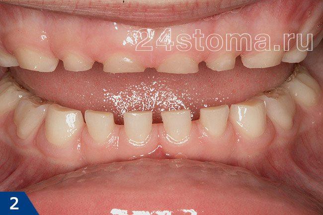 Bruxismus u dětí: Výška všech řezáků je výrazně snížena, stejně jako tesáky. Místa na nižších zubech jsou jasně viditelné, v důsledku jejich vymazání.