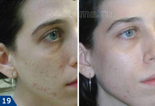 Lézer bőr csiszolási lézerfraxel
