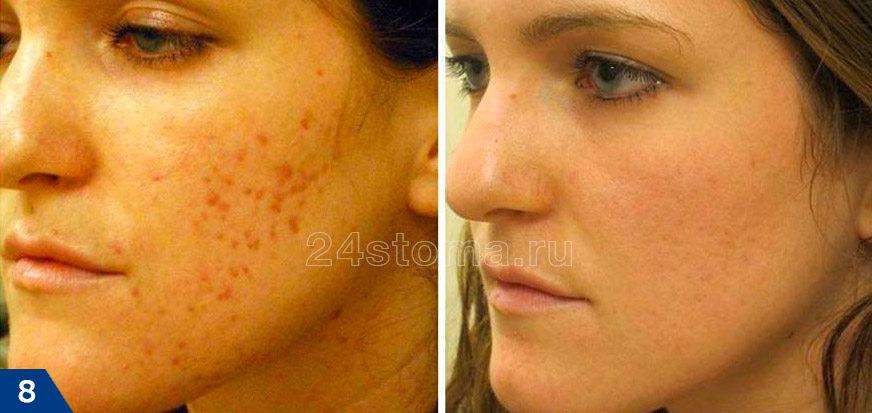 درمان با لیزر نقاط قرمز پس از آکنه (عکس قبل و بعد)