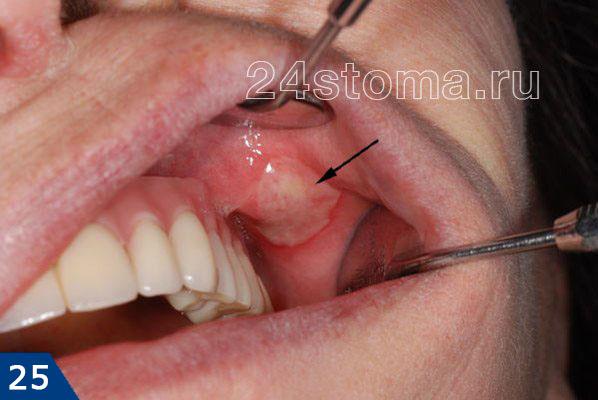 알레르기 성 보철 성염 (점액 뺨으로 보철물과의 접촉 대상에서 섬유소 낙제로 궤양)