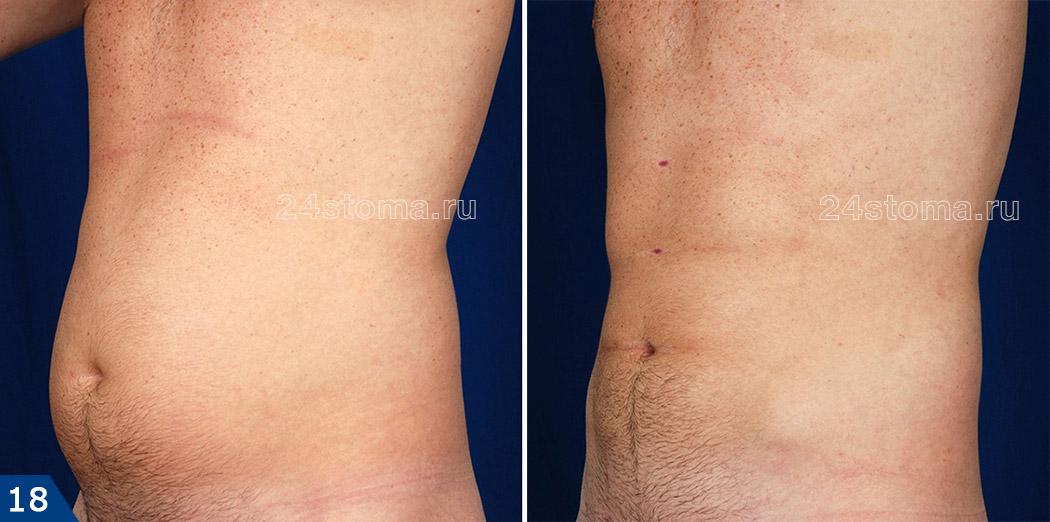 درمان LLLT (عکس قبل و بعد از 8 روش)