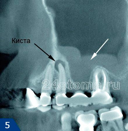 سینوزیت Ondogenic: در بالای طناب 5 دندان دندان کیست؛ در پایین Gaimore پمپ منسوخ / پولیپ.