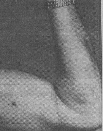 Blutgruppe tattoo on the arm of an SS Officer. Blood Type A.<br /><br /><br /><br /><br /><br /><br /><br /><br /><br /><br /><br /> The SS blood group tattoo was applied, in theory, to all Waffen-SS (W-SS) members (except members of the British Free Corps). It was a small black ink tattoo located on the underside of the left arm, usually near the armpit. It generally measured around 7mm (0.28 inches) long, and was placed roughly 20cm (8 inches) above the elbow.<br /><br /><br /><br /><br /><br /><br /><br /><br /><br /><br /><br /> The idea behind the tattoo was that if a soldier needed a blood transfusion and he was unconscious, or his Erkennungsmarke (dog tag) or Soldbuch (pay book) were missing, the doctor could still ascertain the soldier&#8217;s blood type by locating the tattoo. The tattoo was generally applied by the unit&#8217;s Sanitäter (medic) in basic training, but could have been applied by anyone assigned to do it at any time during his term of service.<br /><br /><br /><br /><br /><br /><br /><br /><br /><br /><br /><br /> When the war ended, the Allies were keen to catch all W-SS members on account of the high volume of war crimes committed by some units. The blood group tattoo helped greatly in identifying former members, leading to the prosecution of guilty men, and in some cases the execution of W-SS men, regardless of whether or not they were actually guilty of war crimes. Many W-SS men tried to remove the tattoo, some by burning it off with a cigarette, but the scar left behind was almost as incriminating, leading some to make a similar scar on the opposite side of the their arm and then claiming the scars were from a bullet which had passed through their arm. In these cases, the Allies would often X-ray the arm to see if any bone damage had occurred, as would have had a bullet actually passed through the arm at those points.<br /><br /><br /><br /><br /><br /><br /><br /><br /><br /><br /><br /> Some members of the SS (such as Josef Mengele and Alois Brunner) evaded capture in part because they did not have the blood group tattoo included.<br /><br /><br /><br /><br /><br /><br /><br /><br /><br /><br /><br /> -Wikipedia<br /><br /><br /><br /><br /><br /><br /><br /><br /><br /><br /><br /> According to Reche (based on his studies of the rural inhabitants of northwest Germany), the long-headed European races were originally characterized by blood type A. Another, less well defined race with origins somewhere in Asia was characterized by blood type B, whereas the pure-blooded inhabitants of pre-Columbian America had neither type A nor B but were exclusively of type O. Reche concluded that a strong correlation had once existed between race and blood type, and that subsequently, through racial intermarriage, the races had become intermingled.<br /><br /><br /><br /><br /><br /><br /><br /><br /><br /><br /><br /> -Racial Hygeine, Robert Proctor