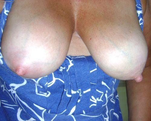 blue veins in chest and breast jpg 1152x768