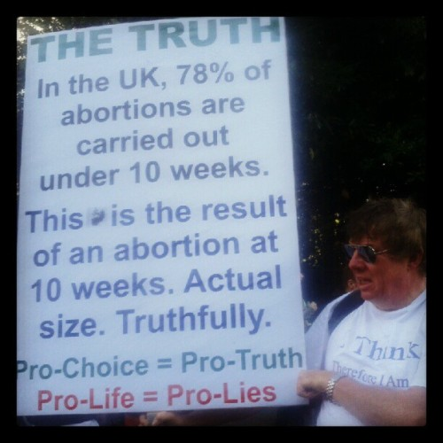 "Man holding a sign saying ""The Truth:In the UK, 78% of abortions are carried out under ten weeks. This is the result of an abortion at 10 weeks. Actual size. Truthfully. """