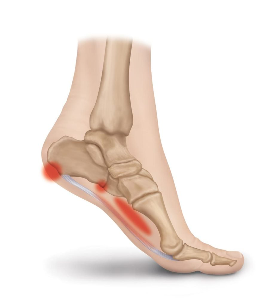 hight resolution of plantar fasciitis pain spots
