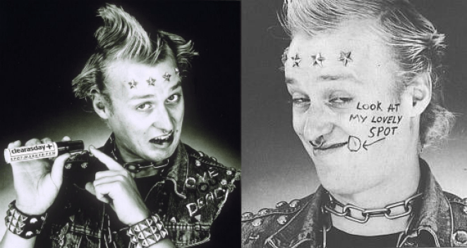 Vyvyan from The Young Ones draws a circle in marker pen around a spot on his face