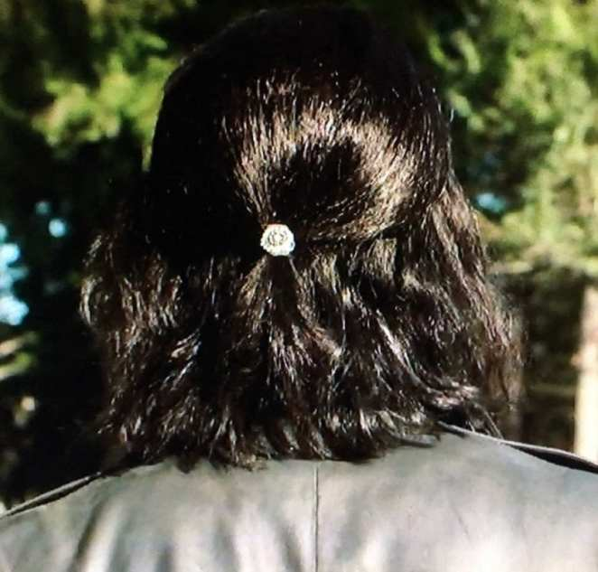 the back of Mr C's head showing his hairpin
