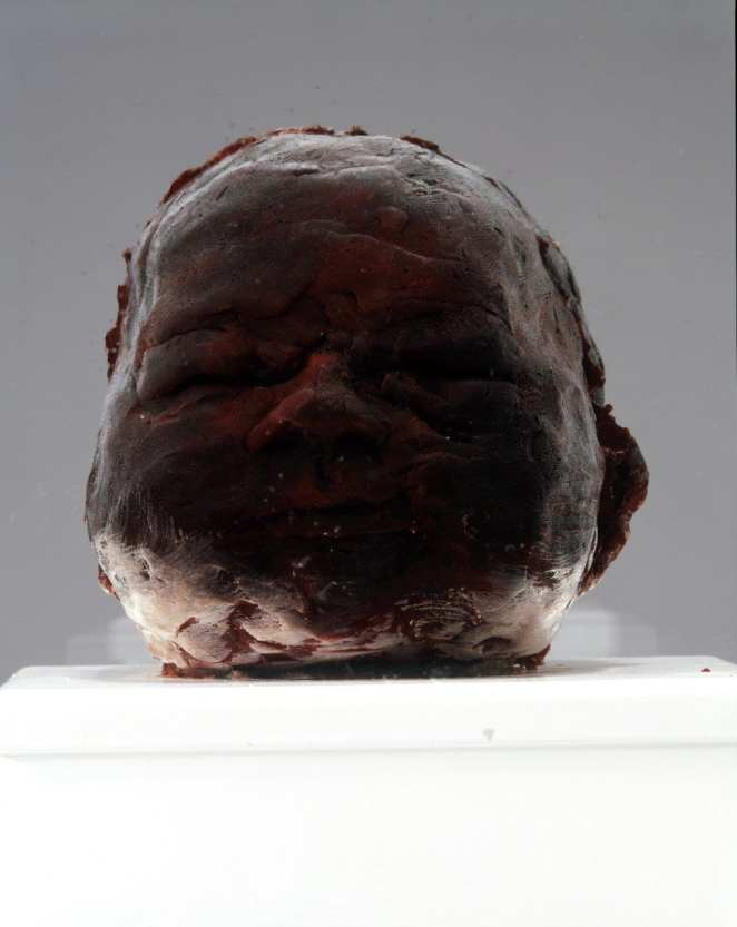 Marc Quinn. Sky. 2006. Human placenta and umbilical cord, stainless steel, Perspex, refrigeration equipment