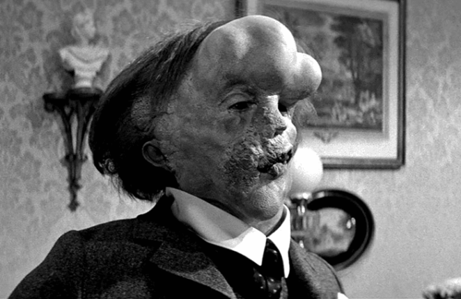 The Elephant Man directed by David Lynch