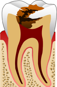 Treatments and prevention tooth decay