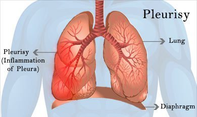 sharp pain in back when breathing 265article - image source Google