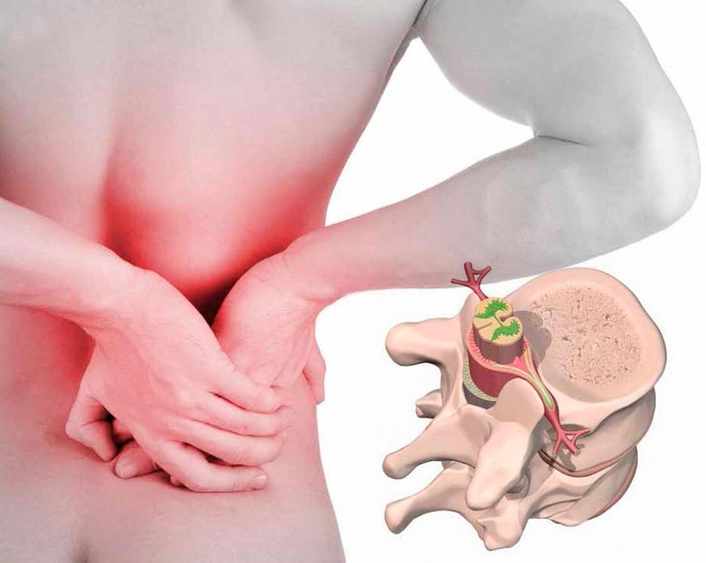 poate răni articulațiile în boli renale boala articulațiilor și a umerilor
