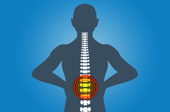 When Back Pain Means More Than a Back Problem – Health Essentials ...