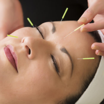 how acupuncture can be