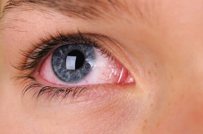 Why Are My Eyes Always Red? – Health Essentials from Cleveland Clinic