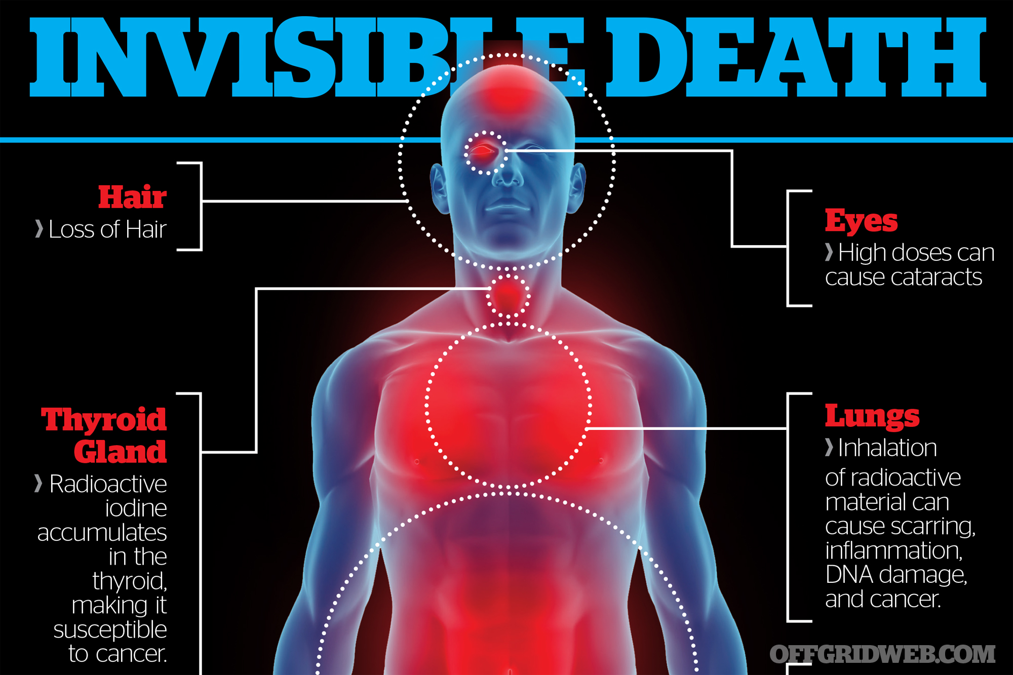 Invisible Death: Acute Radiation Syndrome | RECOIL OFFGRID
