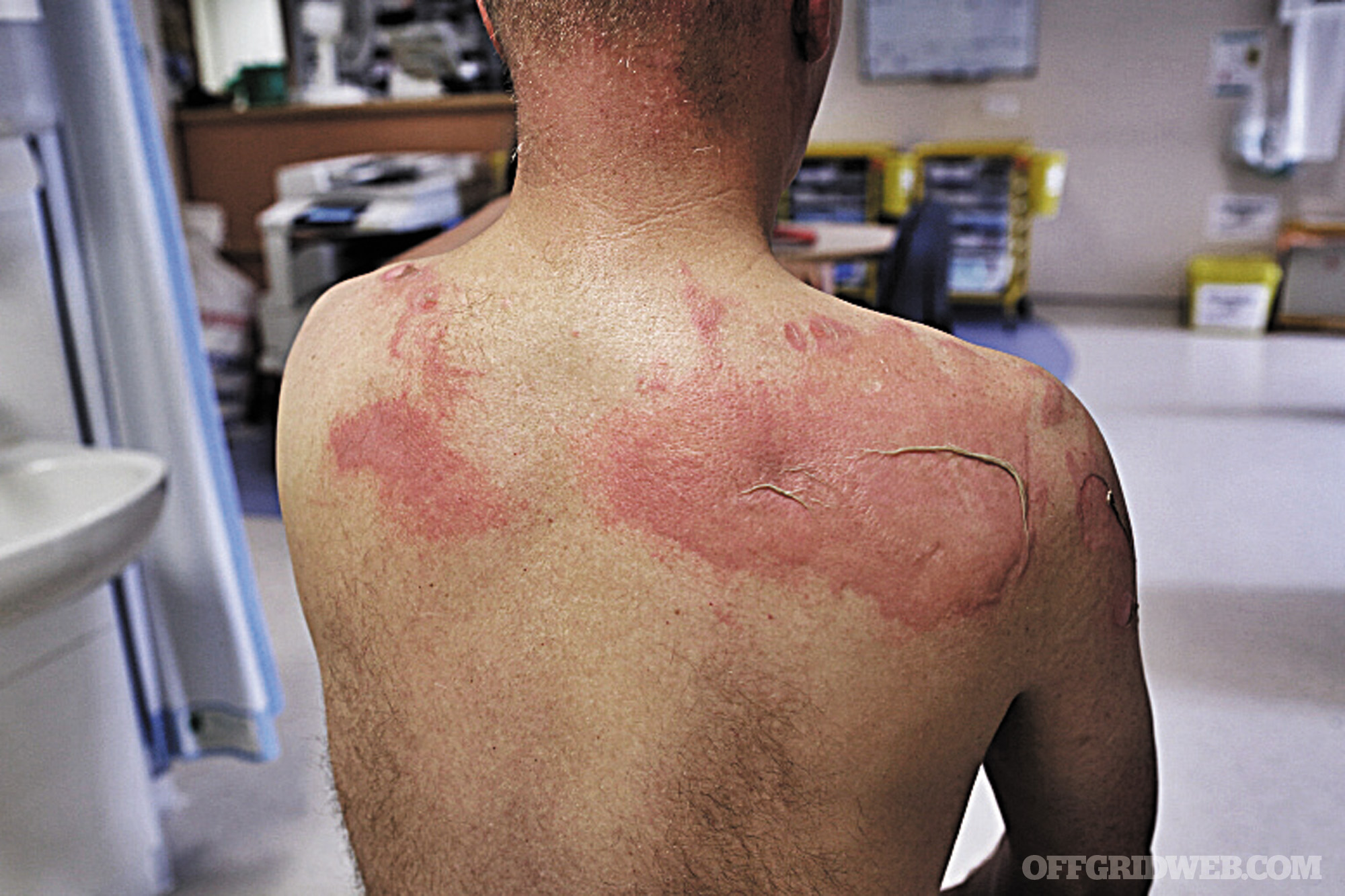 Burn Survival How To Identify And Treat Thermal Burns
