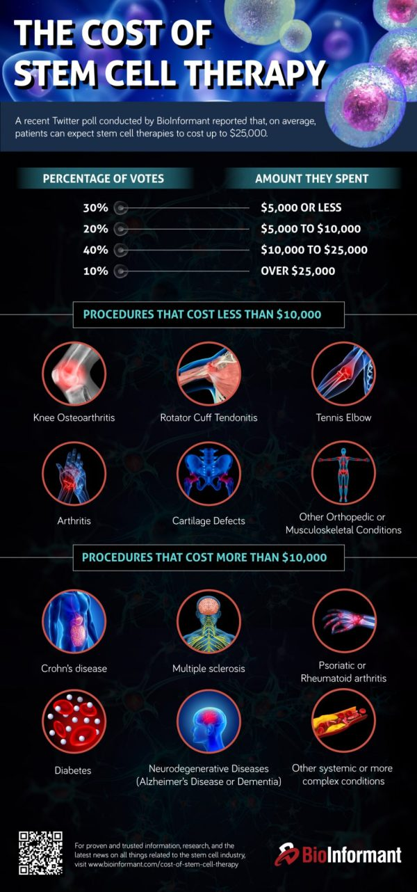 Cost Of Stem Cell Therapy And ' Expensive