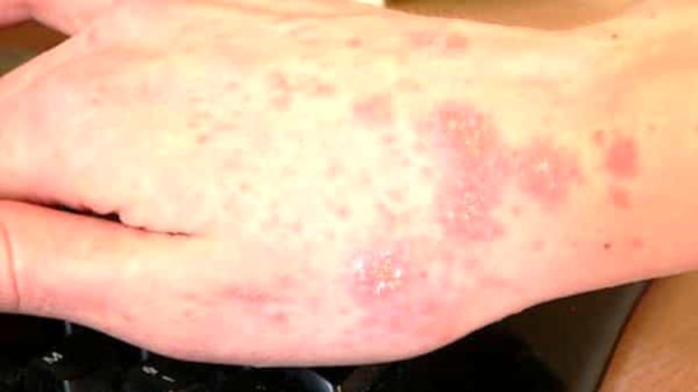 Scabbia e tubercolosi tra i migranti  I numeri della Asl di Milano