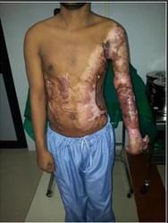 Post Burn Surgery in Mumbai