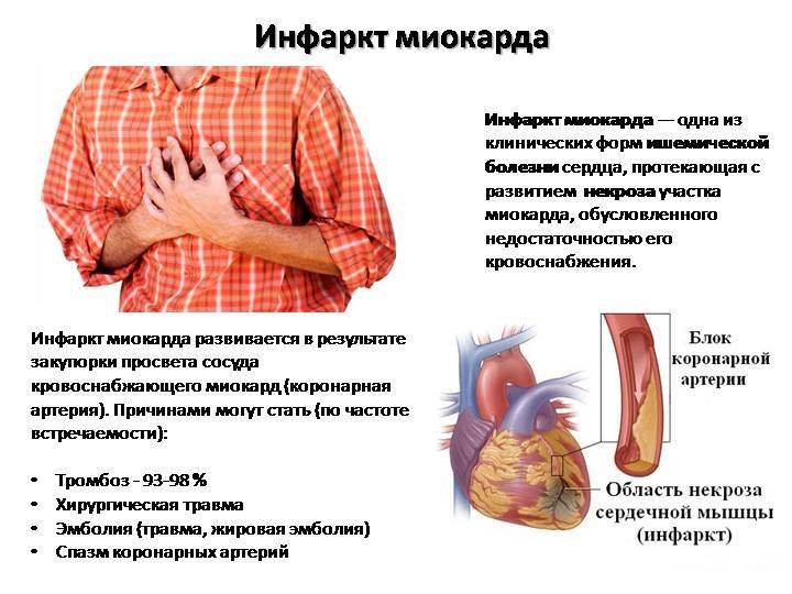 Аспаркам и кардиомагнил совместимость. Можно ли принимать кардиомагнил и панангин вместе