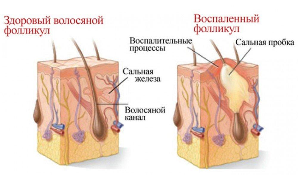 Уплотнение под мышкой не болит. Болезненная шишка под мышкой У ребенка под мышкой выскочила шишка
