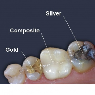White Fillings Headington  Composite Fillings Oxford  Crowns Cowley