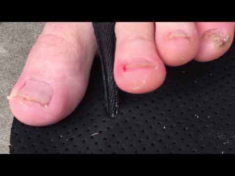 Colton films Tuddles feet.