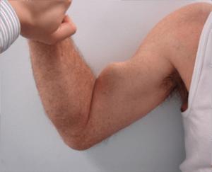 biceps-SLAP-Tear