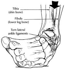 ankle-ligament-tears