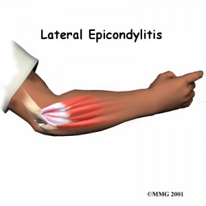 lateral-epicondylitis