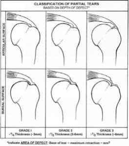 rotator-cuff-tears-classification