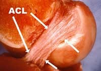 acl-knee