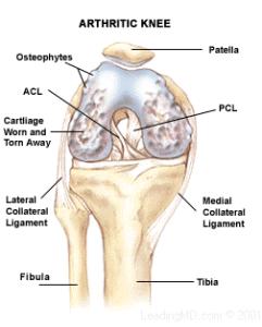 arthritic-knee