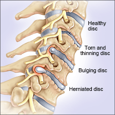 disc-herniation-2