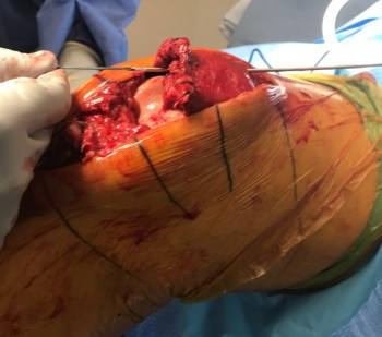 Patellar tendon quadriceps tendon repair-4