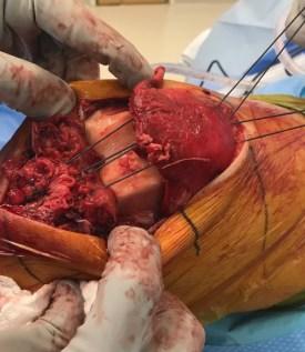 Patellar tendon quadriceps tendon repair-5