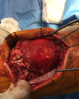 Patellar tendon quadriceps tendon repair-6