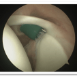 Biceps Tenodesis For Labral And Biceps Tears