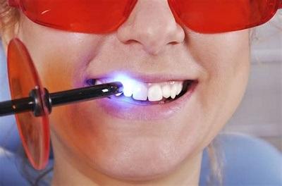 Будут ли видны пломбы при отбеливании зубов