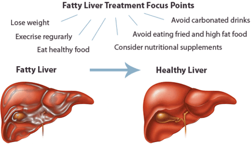Where can you find information for people with liver disease?