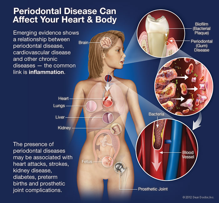 gum-disease-can-affect-body