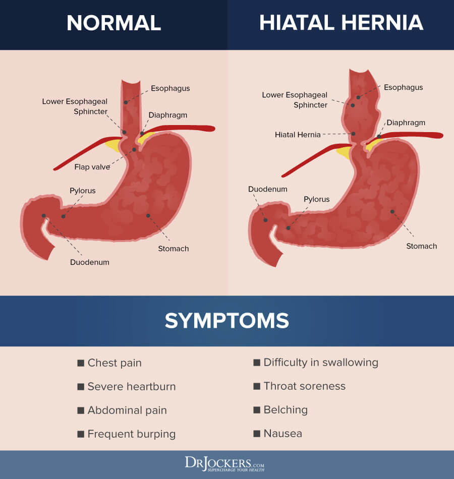 hight resolution of hiatal hernia hiatal hernia what it is and natural treatments