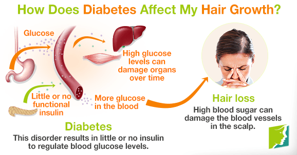Faqs How Does Diabetes Affect My Hair Growth?
