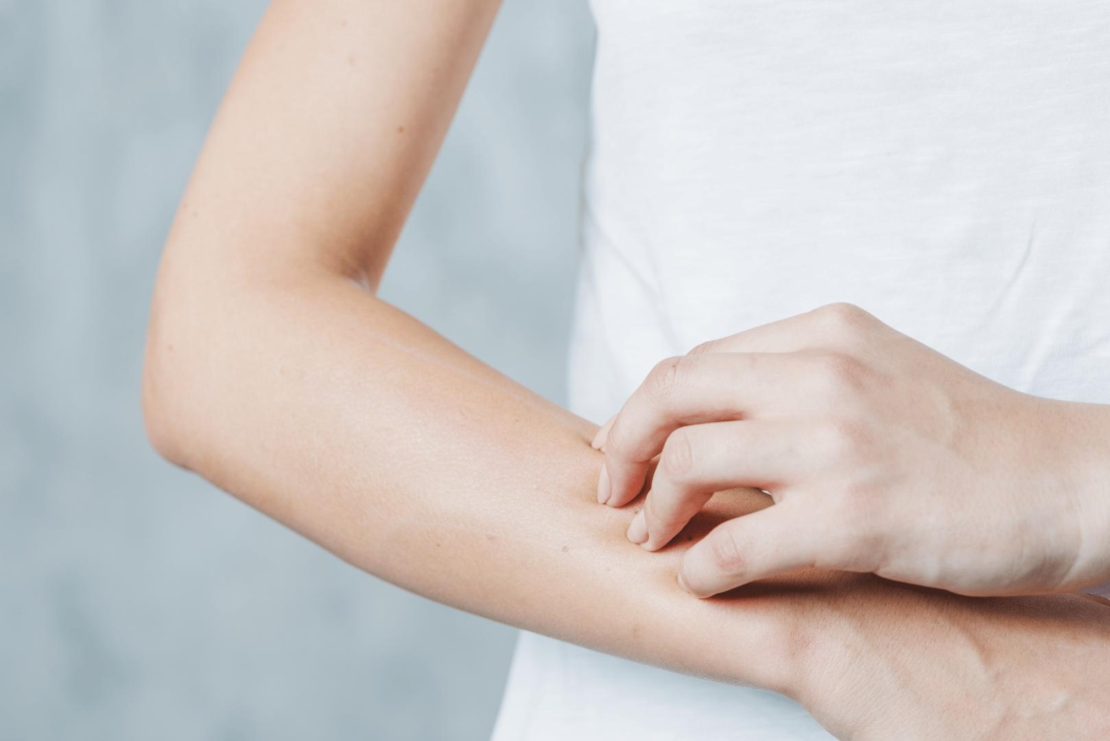 brotoeja pessoa coçando o braco um dos sintomas miliaria rubra