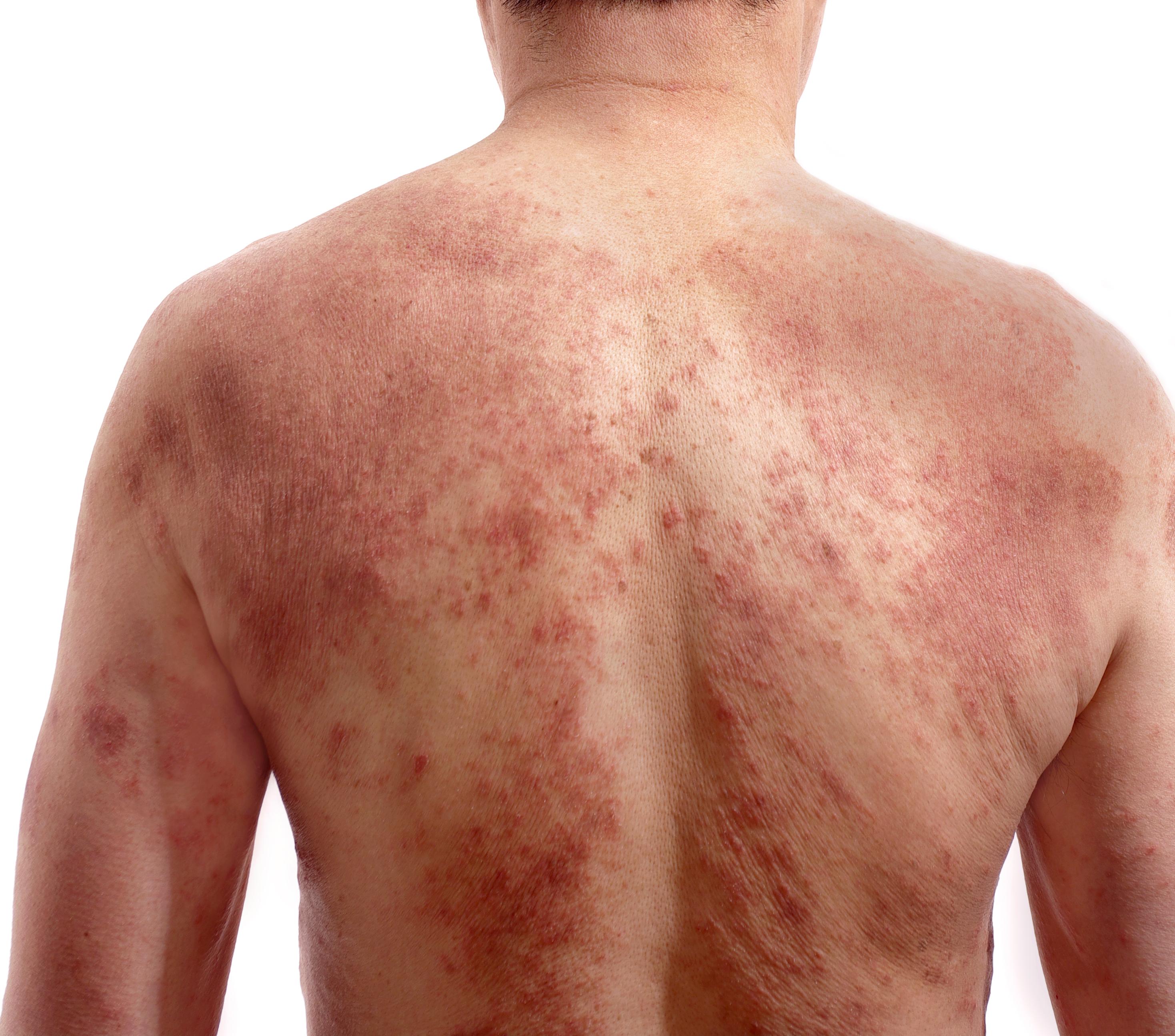 homem com sarna nas costas