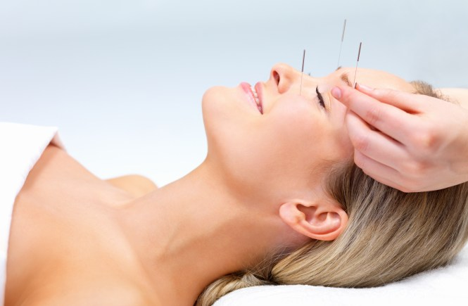 Why-You-Need-Acupuncture-Bellevue-Washington